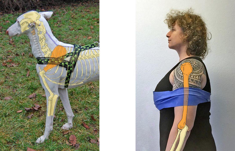comparación arnés con tira frontal a persona con los brazos atados a la altura de los pechos